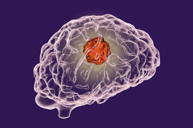 癌癥如何預防?這20種常見「惡性腫瘤」篩查和預防方法建議收藏 - 每日頭條