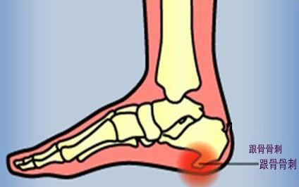 骨刺引起的足跟痛的小方法 - 每日頭條