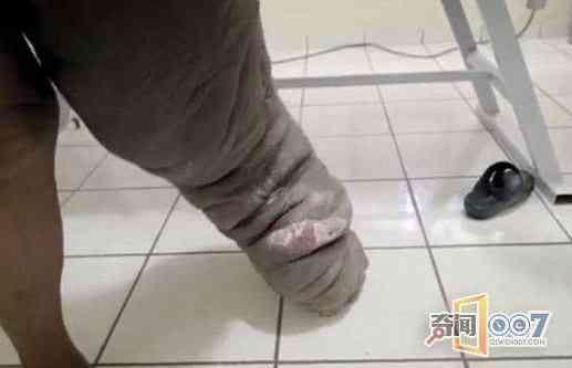 他只是被蚊子咬了一口 結果左腿腫成大象腿 - 每日頭條