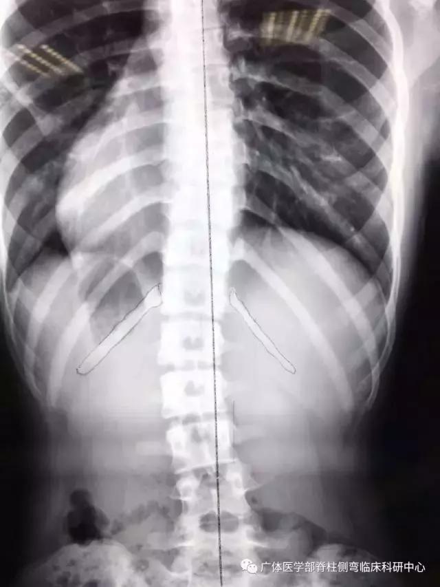 脊柱側彎:第十二肋骨長度不對稱的原因分析 - 每日頭條
