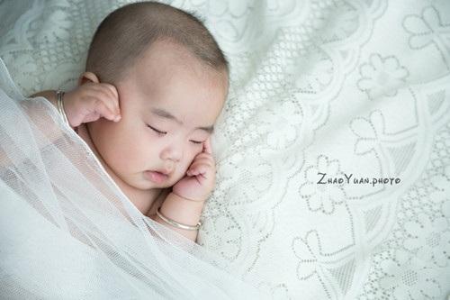 新生兒肚臍發炎怎麼辦?正確護理方法在這裡 - 每日頭條