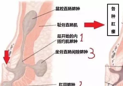 肛周膿腫是什麼鬼? - 每日頭條