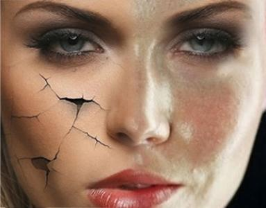 怎樣辨認臉上的是痘痘還是蟎蟲? - 每日頭條