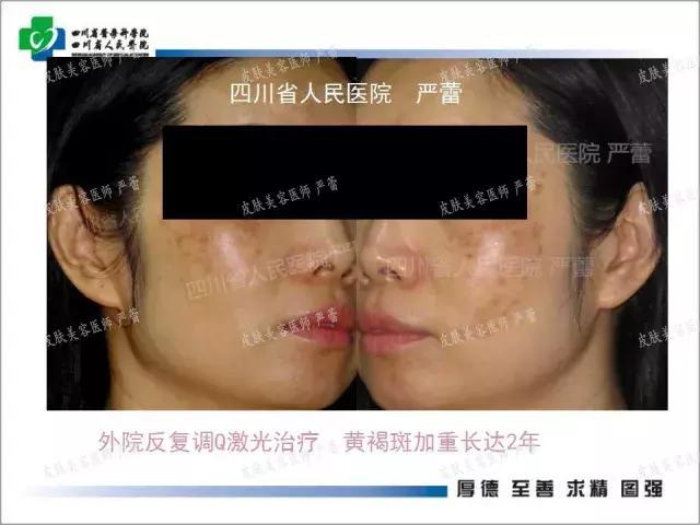 黃褐斑與皮膚屏障的臨床相關研究與治療思路 - 每日頭條