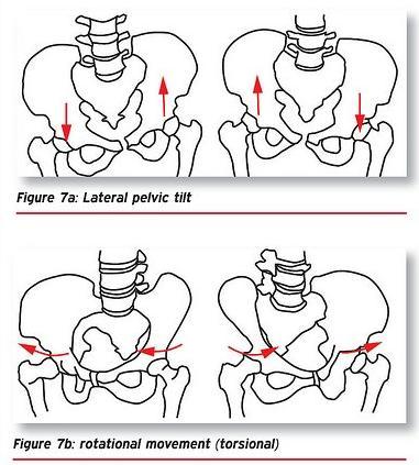 骨盆傾斜怎麼辦 這幾種運動方式你學會了嗎 - 每日頭條