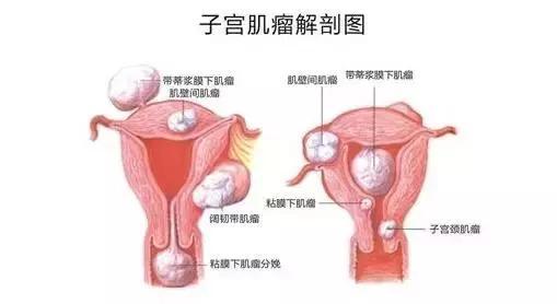 就醫搜|子宮肌瘤。是切還是留? - 每日頭條