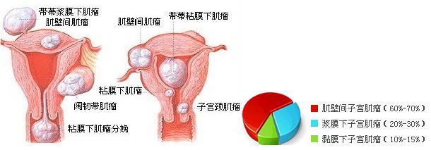 婦科醫院的秘密。子宮肌瘤切除手術有不可逆的傷害。誰割誰後悔! - 每日頭條