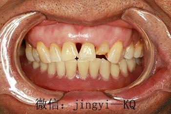前牙缺了一顆用什麼方法修復是最好的? - 每日頭條