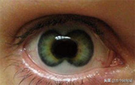雙瞳孔是怎樣的?看東西會影響嗎? - 每日頭條