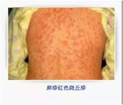 麻疹高發季節到,治療防護五大原則! - 每日頭條