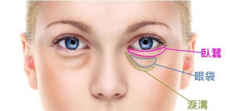 如何辨別眼袋、淚溝和臥蠶 - 每日頭條