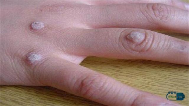 皮膚上出現小硬塊是不是腫瘤? - 每日頭條