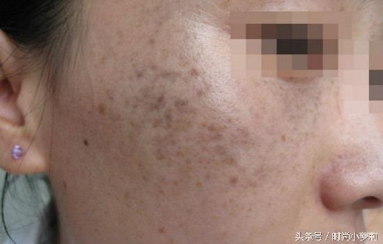 專家教你如何認識臉上的斑 - 每日頭條