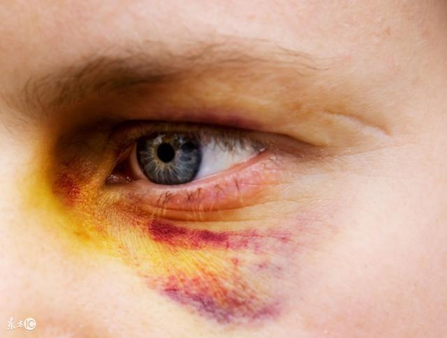 眼睛被打腫了怎麼快速消腫? - 每日頭條