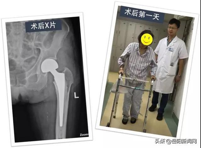換「頭」手術 一天下地,六天出院 - 每日頭條