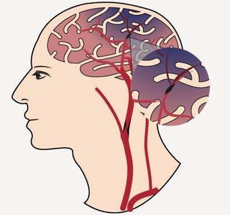 34歲男子突發腦梗塞離世!只因做了這件事 - 每日頭條