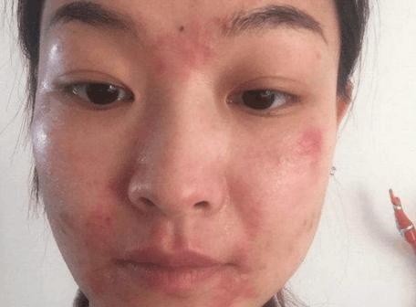 1分鐘自測是激素臉還是皮膚過敏?兩者的區別是什麼? - 每日頭條