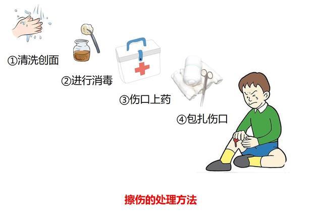 教你簡單處理運動損傷 - 每日頭條
