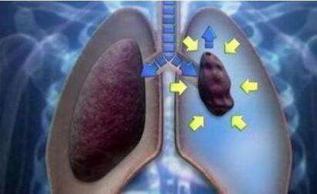 大爺胸里「進」了氣!脹痛難忍呼吸困難。醫生緊急「泄氣」救回 - 每日頭條