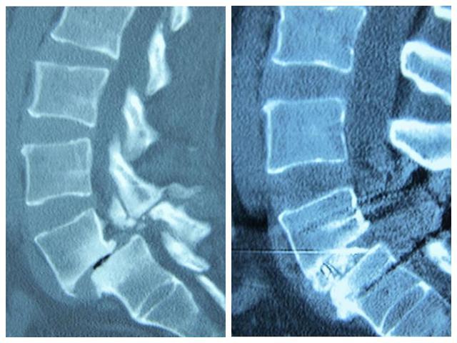 五癥狀或提示腰椎滑脫,該怎麼治療? - 每日頭條