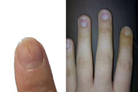 孩子手指甲凹凸不平是為何 細節反映健康狀態 - 每日頭條