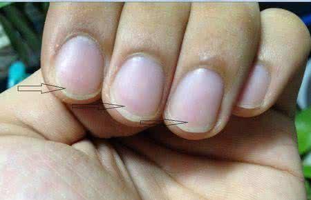 灰指甲的初期癥狀 - 每日頭條