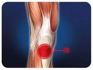 髕腱末端病的運動康復 - 每日頭條