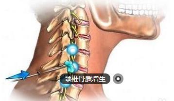 引起頸椎骨刺的原因都是什麼 - 每日頭條