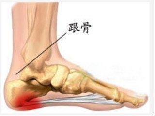 足跟部疼痛這麼多。快快來看看你有哪一種? - 每日頭條