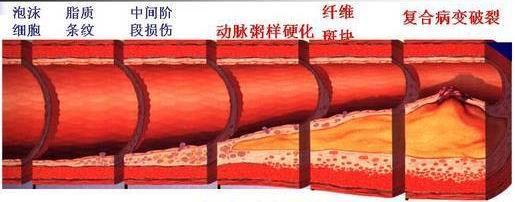動脈粥樣斑塊是怎樣形成的? - 每日頭條