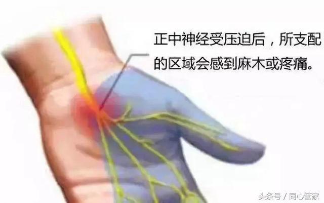 手麻別不當回事。可能是這種疾病在作祟! - 每日頭條
