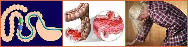左下腹部疼痛的可能病因是什麼?該怎麼辦? - 每日頭條