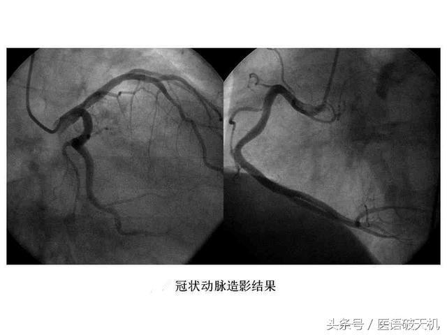 美女護士與你分享:「冠狀動脈造影」檢查前的注意事項 - 每日頭條