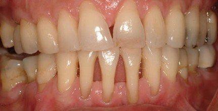 牙齦萎縮可以恢復嗎? - 每日頭條