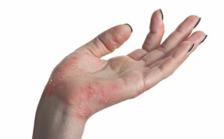 手部濕疹。用了家裡的這個東西。半月就好了 - 每日頭條