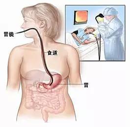 四五十歲該做胃腸鏡檢查了 - 每日頭條