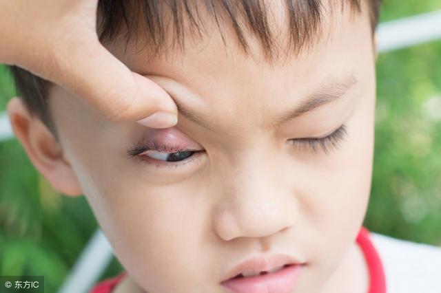 眼睛搞成這樣了腫麼辦?是傳說中的針眼嗎? - 每日頭條