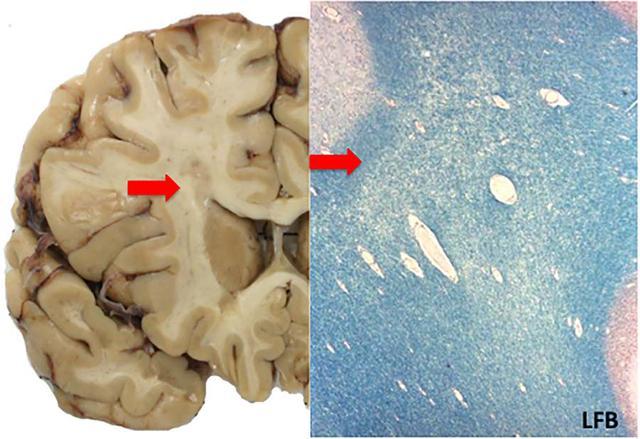 這些病理與影像學知識,幫你更好地理解多發性硬化 - 每日頭條