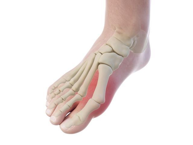 腳趾頭痛還變形?你可能患上「拇囊炎」,如何治療? - 每日頭條