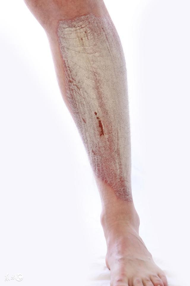 牛皮癬的初期癥狀有哪些圖片類型。治療的方法 - 每日頭條
