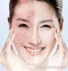 激素臉戒斷反應有哪些你需不需要經歷 - 每日頭條