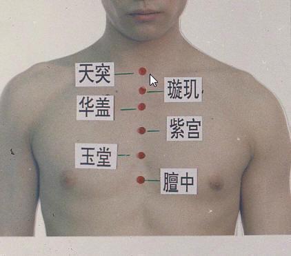 慢性咽炎,喉嚨紅腫,濾泡增生,不想吃藥? - 每日頭條