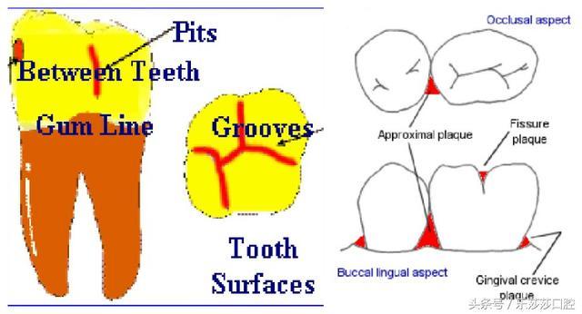 牙齒爛完了怎麼辦? - 每日頭條