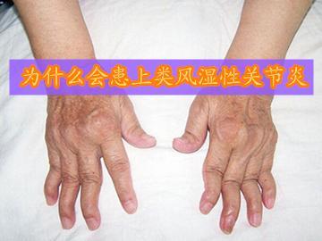 類風濕性關節炎的起病原因是什麼 - 每日頭條
