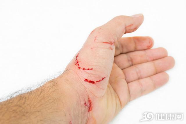 身體受傷不留意。當心破傷風找上門!幾大癥狀需警惕了 - 每日頭條