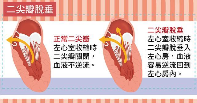 「圖解」看臺灣醫生怎麼說:心臟瓣膜病的病因,癥狀和治療! - 每日頭條