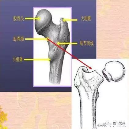 股骨頸骨折應該選擇空心釘內固定術?還是人工髖關節置換術? - 每日頭條