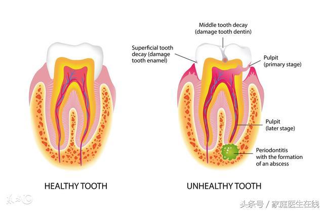 如果牙齒出問題。會對人體有什麼影響?看完的人都去刷牙了 - 每日頭條