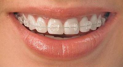 牙齒矯正,如何正確選擇適合自己的牙套? - 每日頭條