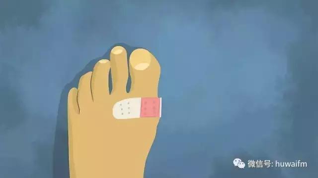 一篇文章看懂你的腳上為什麼容易起水泡。起了水泡該怎麼辦 - 每日頭條